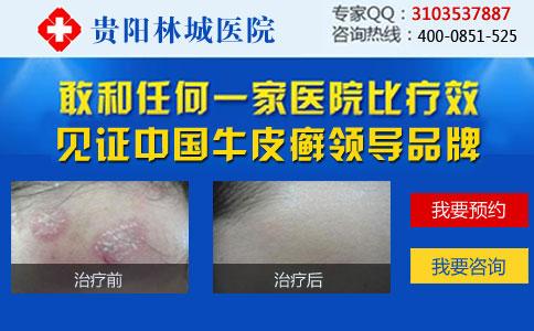 皮肤出现红疹是得了牛皮癣吗